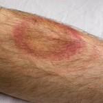 Emilcott EHS Lyme Disease